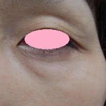 ★目の下の脂肪取りモ…