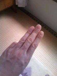 はりとお灸の豐春堂のブログ-不容②