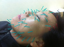 美顔鍼ハリリフトアップ