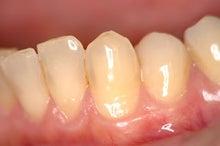 $浜松町の歯医者さんが教える「歯ブログ」