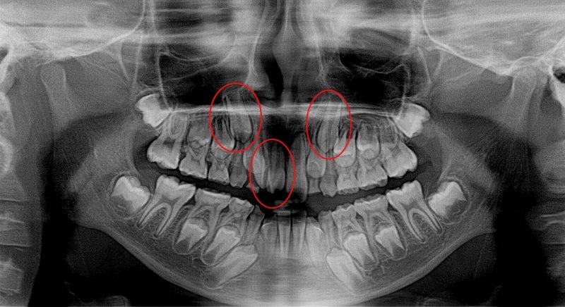 X線CTの話。 ビートルズの偉大な遺産?