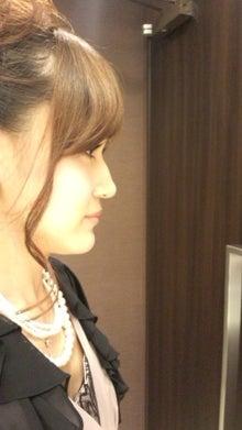 顎変形症~歯列矯正・外科手術~闘病記-120916_161458.jpg