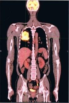 $肺癌を治す!抗がん剤はつかわねぇぜ 肺がん完治ってワイルドだろうぅぅ