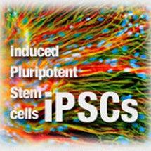 iPSCs