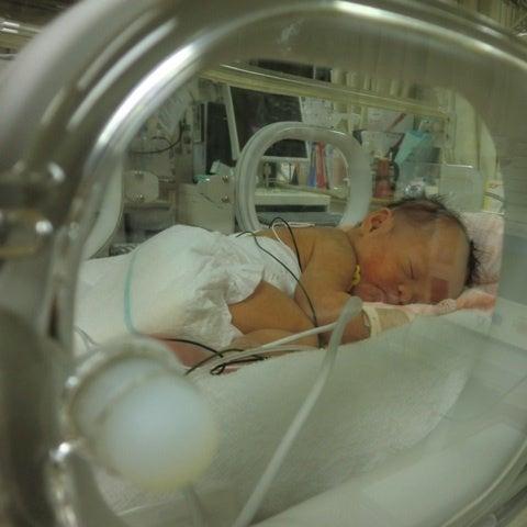 中 予兆 妊娠 ダウン症 娘がダウン症と診断されるまで…その1(妊娠)