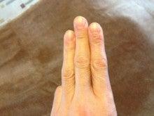 はりとお灸の豐春堂のブログ-大巨①