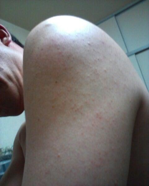 インフルエンザ 予防 接種 後 腫れる