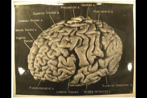 アインシュタインの脳は小さいけ...