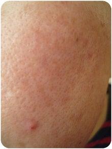 $毛穴ママのブログ-頬毛穴 11月9日