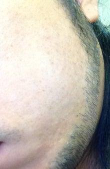 ヒゲ脱毛はじめました。-121122_1