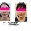 小顔矯正の効果  ④  〜桑名、四日市の小顔矯正専門院〜の画像