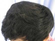 薄毛治療・発毛治療・AGA治療認定院・鹿児島三井中央クリニック-後2