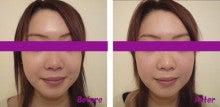 小顔整顔Before&After