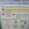 細菌性結膜炎の画像