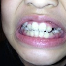 歯が抜けましたの記事より