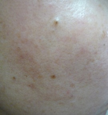 $毛穴ママのブログ-頬毛穴画像  2012年12月18日