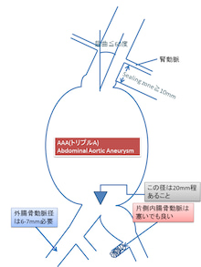 【ダイジェスト版】 大動脈瘤・大動脈解離診療ガイドライン