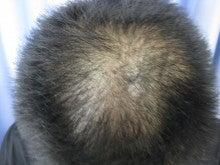 薄毛治療・発毛治療・AGA治療認定院・鹿児島三井中央クリニック-まえ1