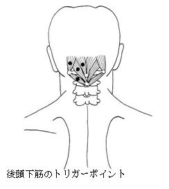 後頭部のこり、後頭部のつまり、頭痛 : カイロプラ …