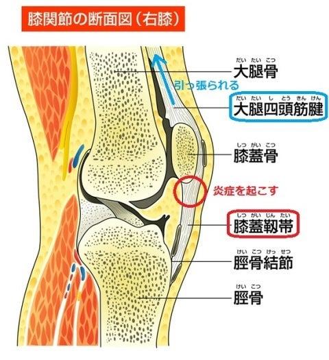 「ジャンパー膝 イラスト」の画像検索結果