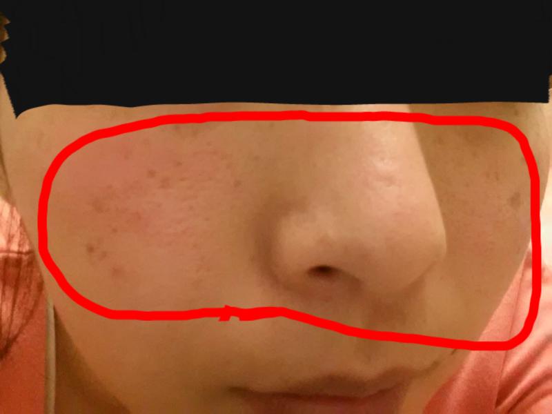 日光アレルギー顔