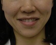 表情筋トレーニングで健康的な美しい顔を目指す!フェイスニング講師石田隆子~カラのブログ~