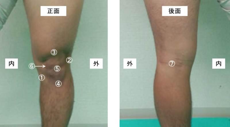 トレーナー情報発信マガジンめんてなラボ膝の構造について