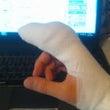 指が・・・(注意して…