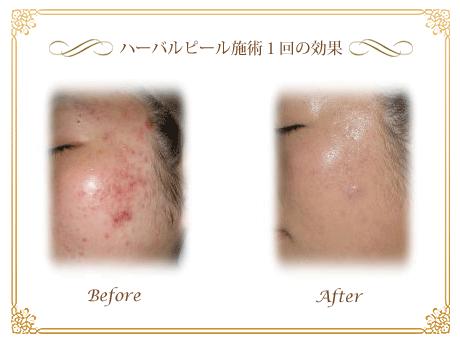 $神戸三宮 ハーバルピール♡美肌作り専門サロン 究極の新美容で美肌再生♡