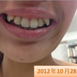 半年間の歯の動き