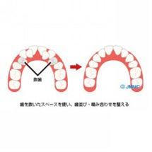 矯正歯科治療のために…