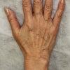 「リデンシティⅡ」による、手の甲の若返りをご紹介します。の画像