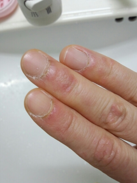 しょーちゃんのブログ皮膚筋炎の手