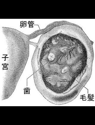 卵巣 嚢腫 再発 卵巣嚢腫の再発の確率とは? - xn--1lru7efxiuz3b.com