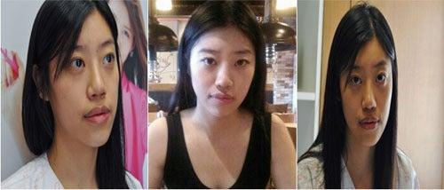 韓国整形サポート・ナビブログ、韓国整形に失敗しないように、