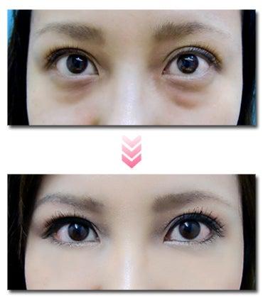 目の下 の たるみ とり 目の下のたるみ取り治療のダウンタイムや値段、手術方法 共立美容外...