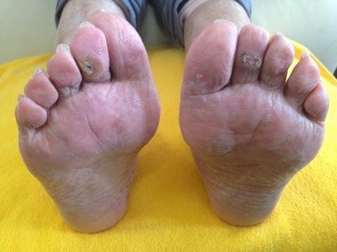 足 の むくみ 病気 高齢 者 【高齢者の足のむくみ】浮腫んでしまう3つの原因とセルフケア