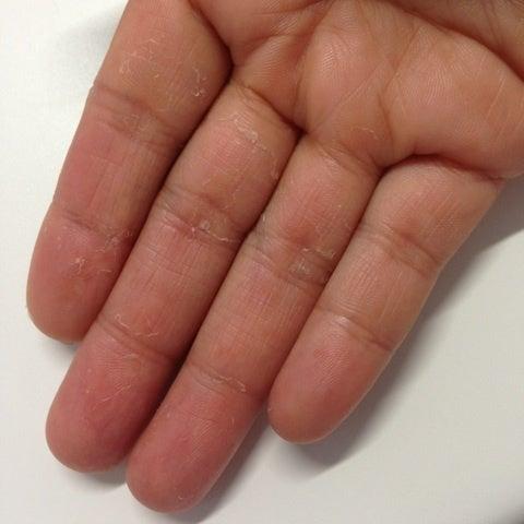 皮膚筋炎患者の生活。(旧・多発性筋炎患者の生活。)皮膚症状の記事(9件)手指の状態 追記手指の症状。体調記録今までに無かった症状。脂漏性皮膚炎。皮膚症状の経過メモ。(追記あり)頭と首の皮膚炎、その後。浅い眠りと紅斑メモ