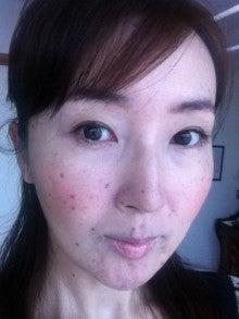 45歳→20代の美肌を目指すド根性美魔女のブログのブログ