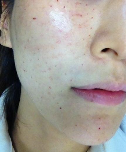 水光注射 施術後|大阪の美肌・しみ・たるみ治療なら 美容皮膚 ...