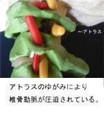 $治らない慢性症状なら【関西カイロプラクティック】大阪府池田市の整体院-ムチウチ