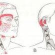 筋筋膜性疼痛症候群(…