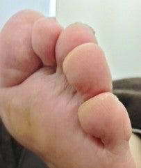 足 の 小指