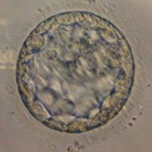 D18,胚盤胞移植,…