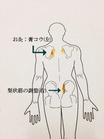 松山市の整体  「 鍼灸整骨院めぐる」