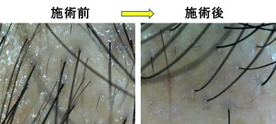 $仙台で98%発毛、育毛!!薄毛を克服サロンブログ!!