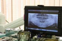 長谷川歯科医院のブログ-治療方針