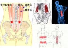 『腰』について ~筋膜性ぎっくり腰~