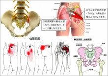 『腰』について ~仙腸関節炎~