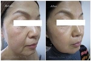 BeautySalon ViVi 千葉/ハーバルピールと眉デザインが人気のフェイシャルエステサロン